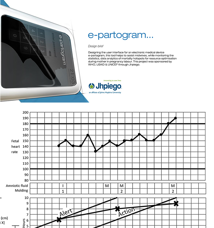 ePartogram Android Application